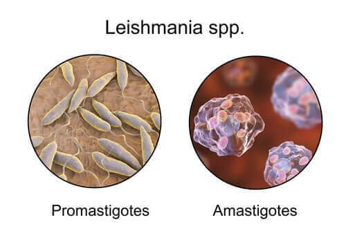 리슈마니아증 기생충